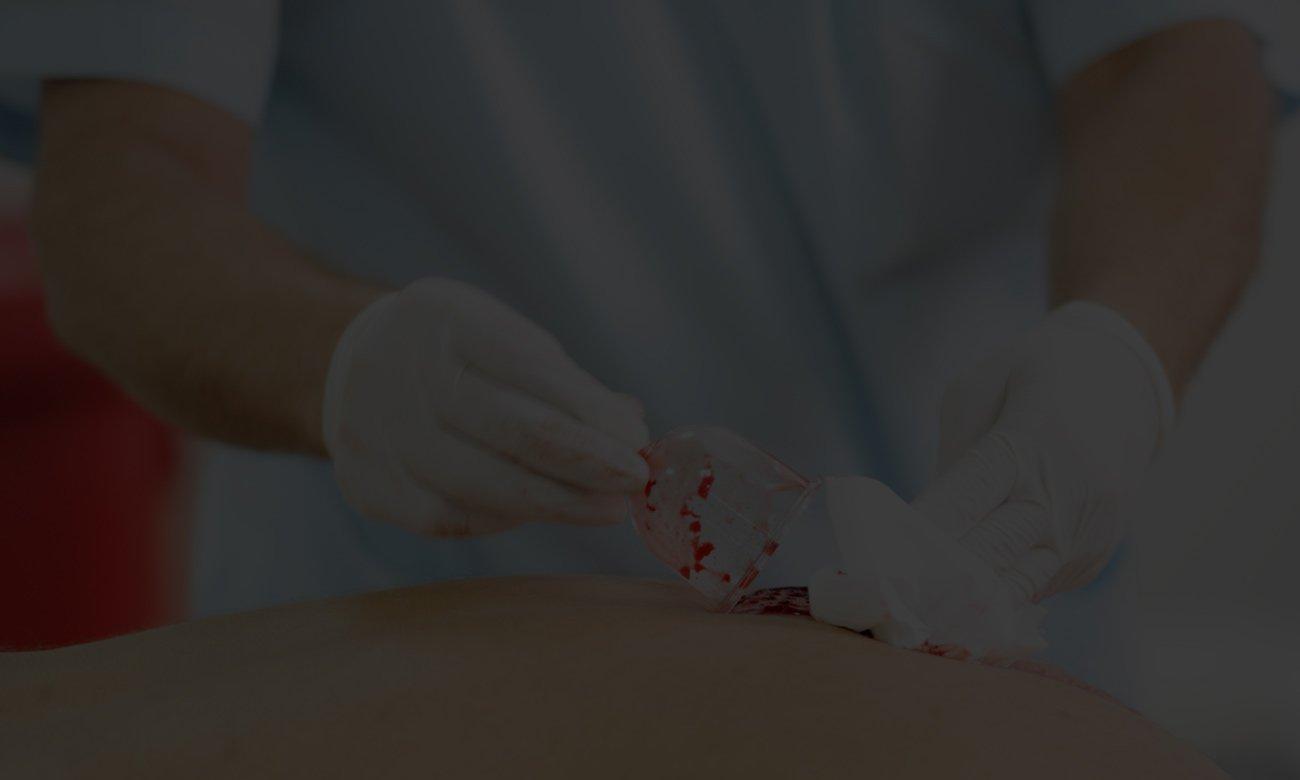 HiJama Medical therapy