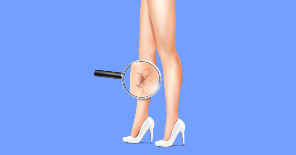Signs of Varicose Veins and How You Can Treat Them