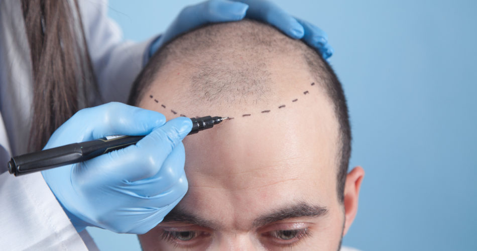 5 Things You Should Know When Considering a Hair Transplant in the UK