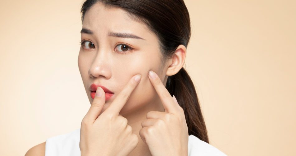 Oily Skin, Go Away: Beat the Blues With the Best Tips!